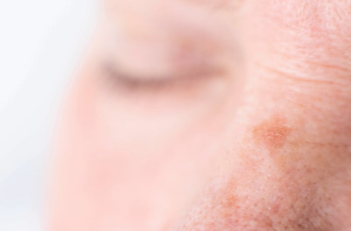 How Can You Fade Age Spots and Dark Spots Naturally?
