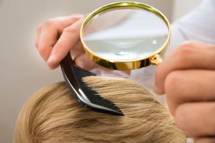Scalp Psoriasis Can Mean the Discomfort of Redness and Itchiness