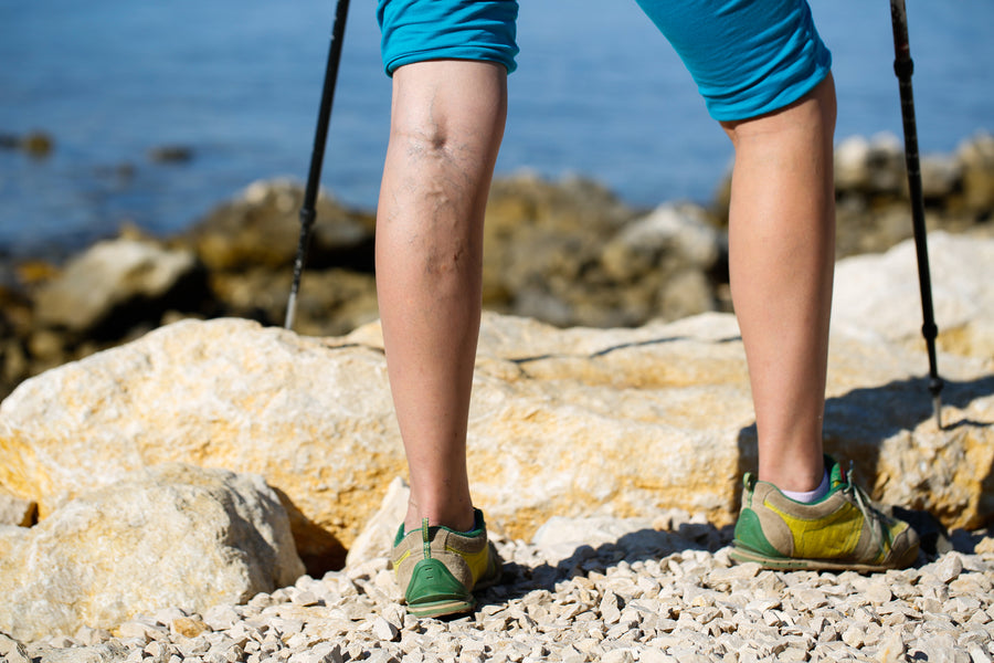 What Do You Need to Know About Varicose Veins and Spider Veins?