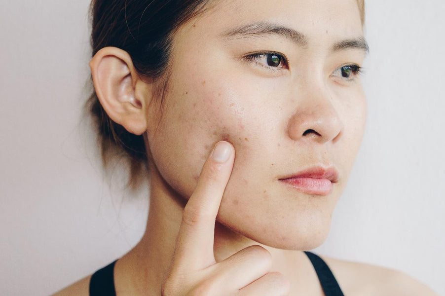 How to Treat Acne Scars After an Outbreak