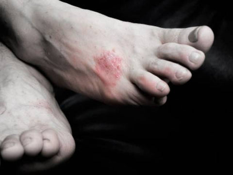 athletes foot infection