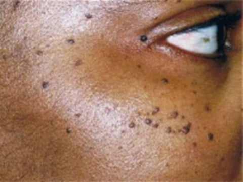 face skin tags