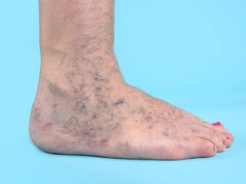 varicose veins on foot
