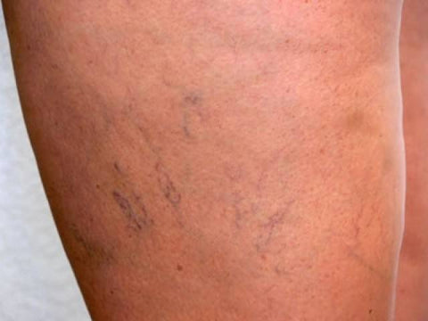 what do varicose veins on thighs look like
