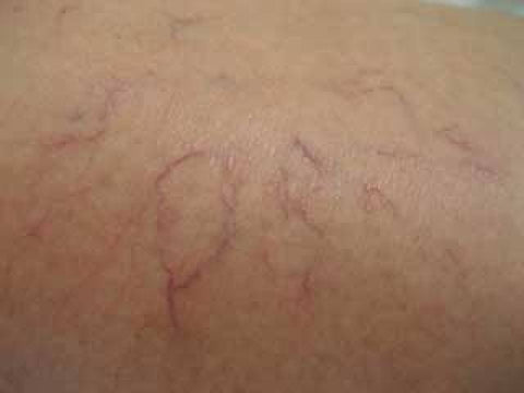 how to varicose veins look