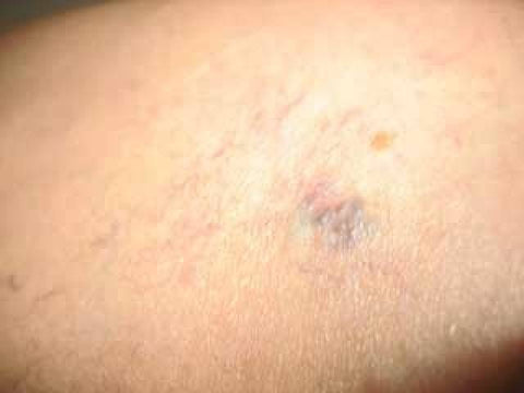 varicose veins and spider veins on thigh