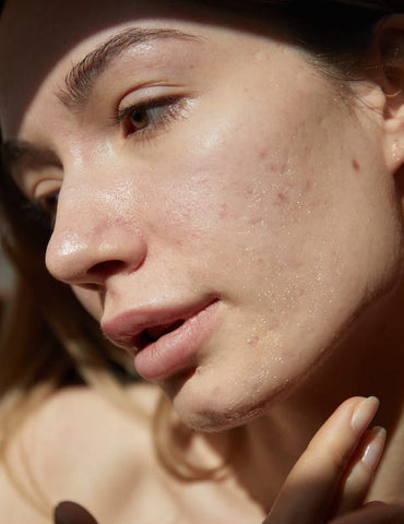 Difficulties treating persistent acne - what can I try?