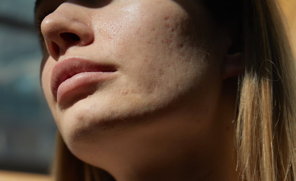 Where to begin treating persistent acne