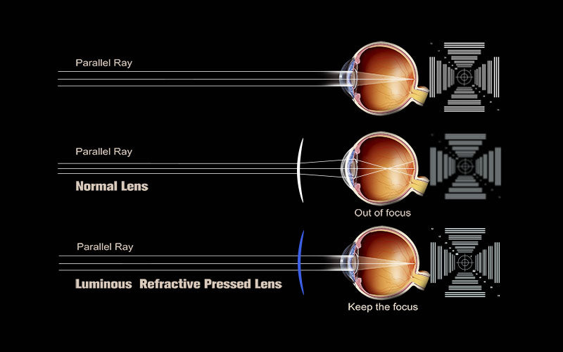 Toric Lens-Ultimate Field of Vision