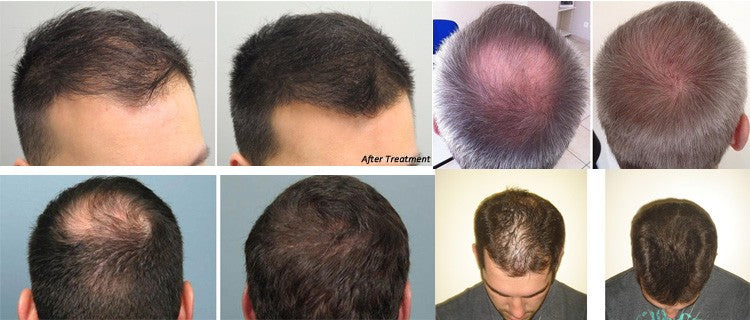 HairX™ Home Professional LLLT Hair Loss Treatment Regrowth For Men & Women Device