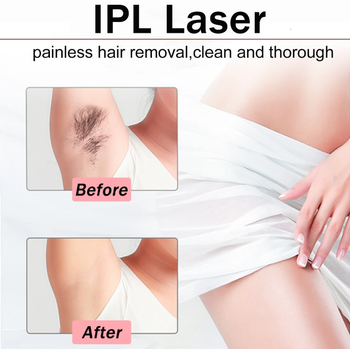 HairErase™ 999999 Flash IPL Laser Permanent Hair Removal Epilator