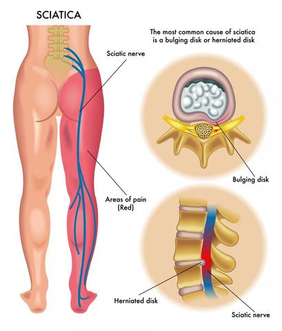 What is sciatica and how do you treat it?