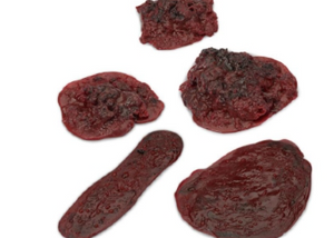 Clots and Hemorrhages - Set of 5 Life/Form®