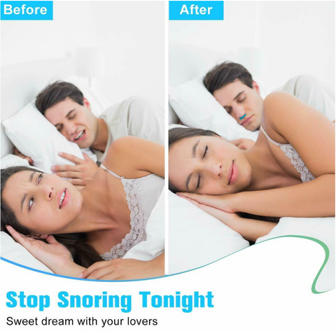 SnoreX™ Anti Snoring Nose Clip Device, Stop Snores, USB Rechargeable PM2.5 Air Purifier