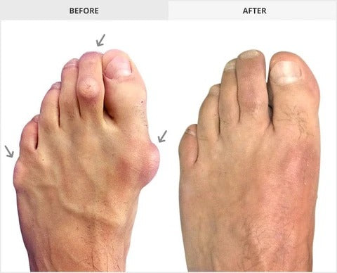 Experts Recommend-Silicone Hammer Toe Corrector
