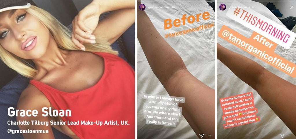 Fake Tanning Solution for people who suffer from Eczema or sensitive skin