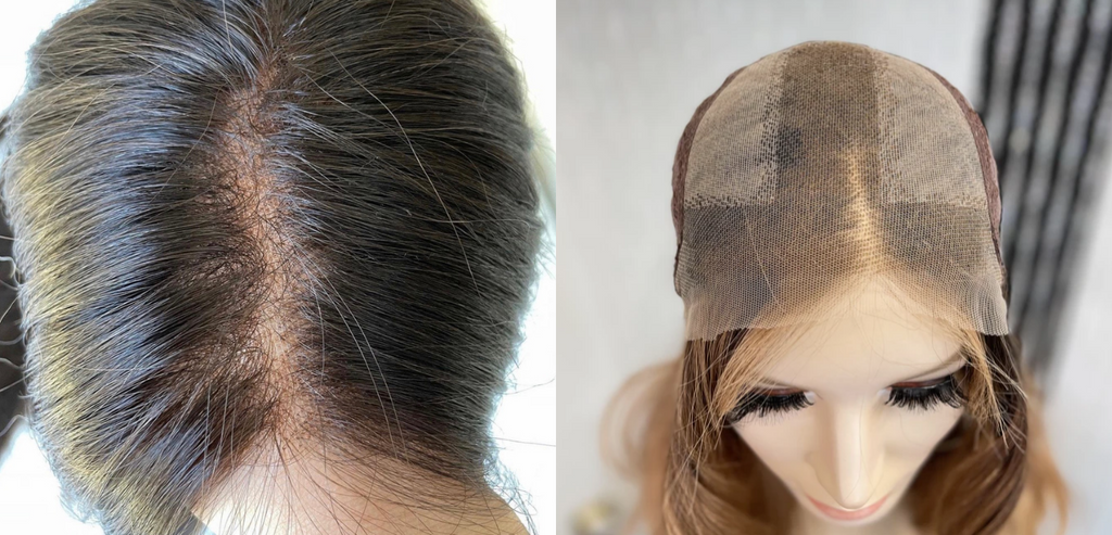 lace top wig
