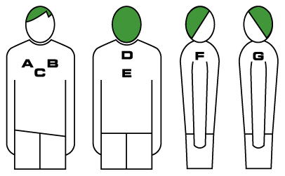 Diagram of positions where crests and lettering can be placed on a top.
