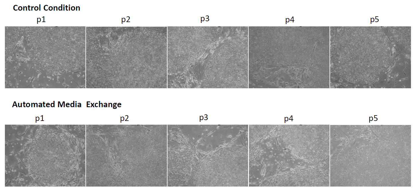 Embryoid Bodies (EB) of mouse iPS cells