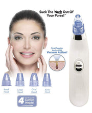 Load image into Gallery viewer, 4 in 1 Blackhead Remover and Whitehead Remover