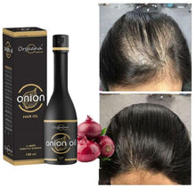 Load image into Gallery viewer, Onion Growth Hair Oil ( 100ml )