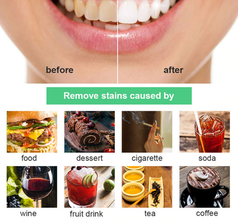 comparaison white teeth and dirty teeth