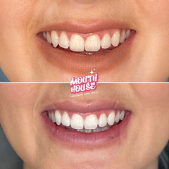 Teeth Whitening Gold Coast | Mouth House