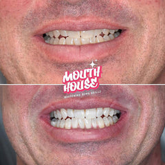 Teeth Whitening Service | Mouth House