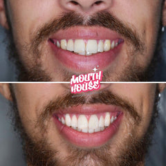 Teeth Whitening Gold Coast