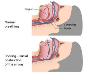 Obstructive Sleep Apnea Illustration - Snoring pattern