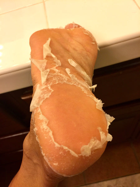 Valentina L.A. Foot Exfoliating Peel