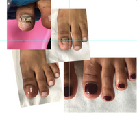 Toeflex Hybrid Gel for Toe nail reconstruction, takes less than 10 mins from beginning to end .
