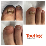 Toeflex Brush and Spatula for Toe nail reconstruction, takes less than 10 mins from beginning to end .