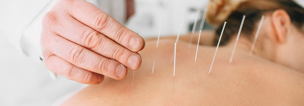 Massage acupuncture