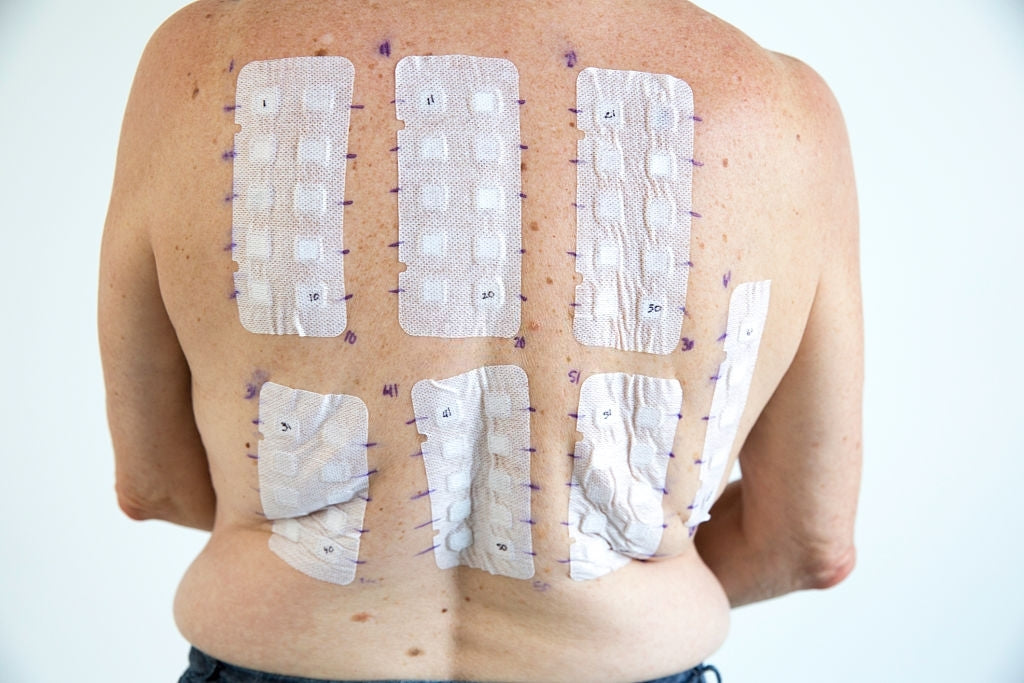 Do Weight Loss Patches Really Work?