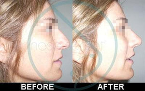 Invisible Nose Shaper Lifting Beauty Kit