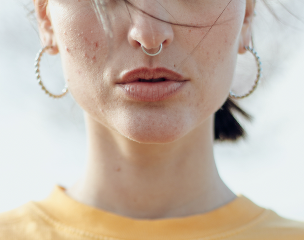 Woman with acne on lower half of face