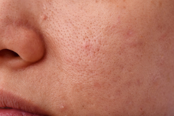 5 Best Ways to Fight Clogged Pores
