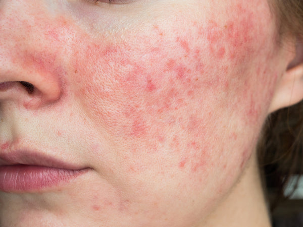 Derm-Approved Rosacea Skin Care Routine | Rosacea Awareness Month