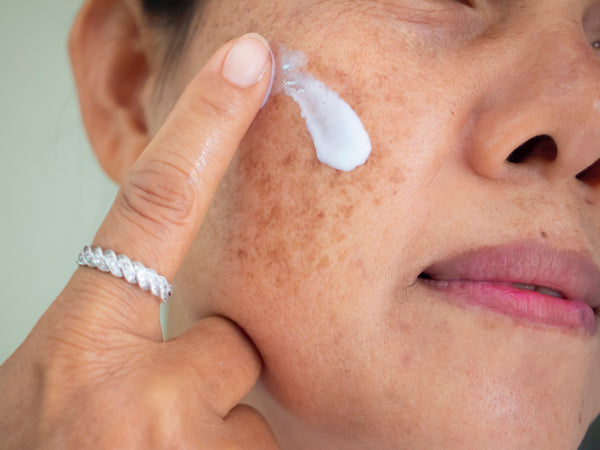 Melasma: Causes, Prevention, & Treatments