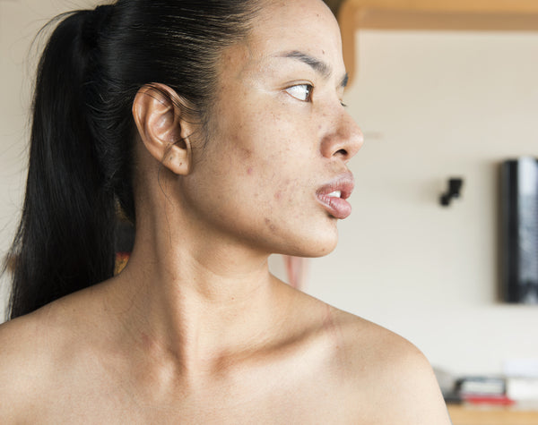 Hormonal Jawline Acne: Where Does It Come From?