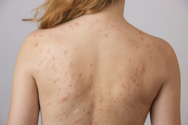 How to Clear Hormonal Body Acne on the Back, Shoulders & Chest