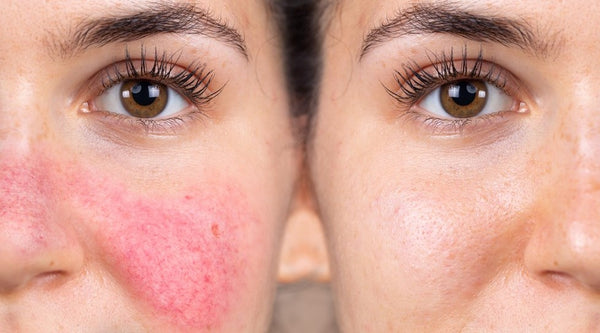 Rosacea: Symptoms, Causes, and Top Treatments