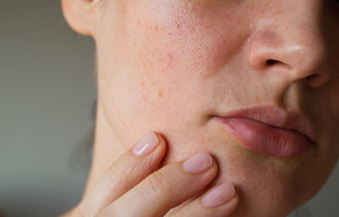 sensitive skin can be uncomfortable