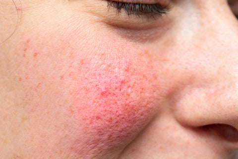 Avoid dermaplaning if you have rosacea