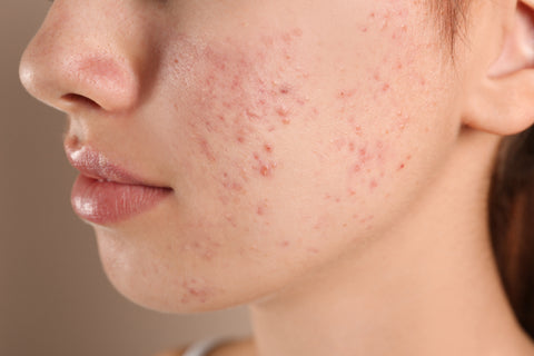 IPL treats all stages of acne