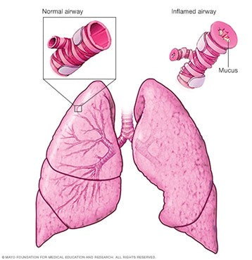 Graphic of lungs with inflamed airway versus normal lungs