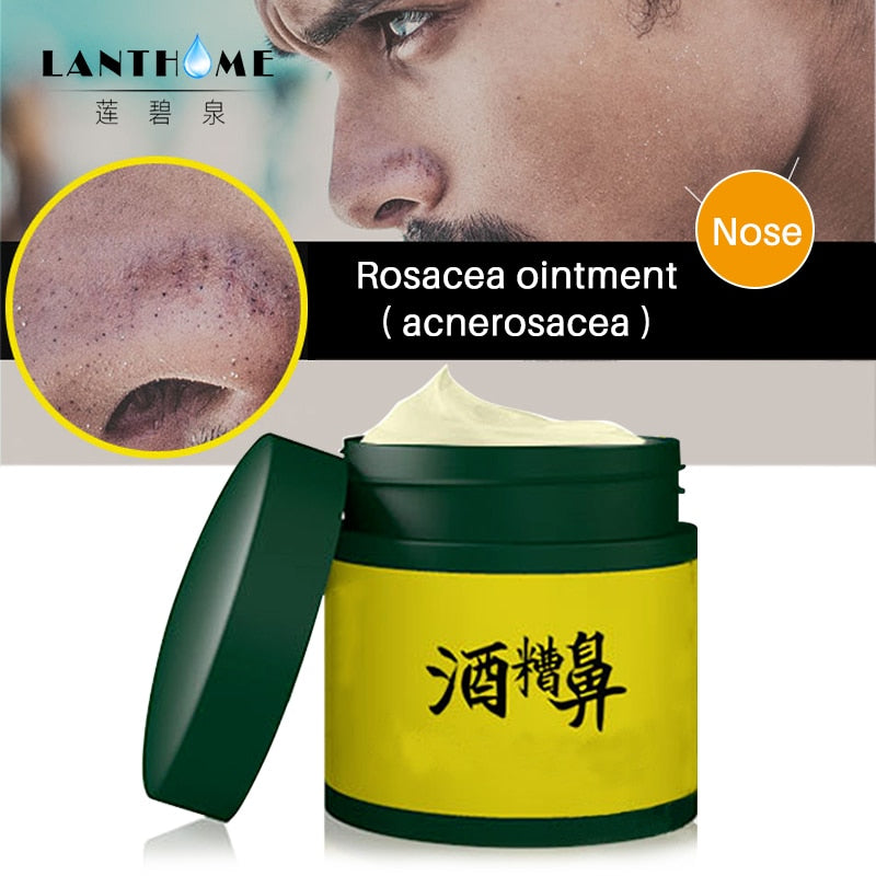 Rosacea Cream Red Nose Ointment Remove Blackhead Acne Skin Care Herbal Anti Pimple and Mite Acne Redness Treatment Mild Treat