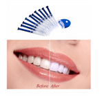 Brighter Teeth Whitening Kit