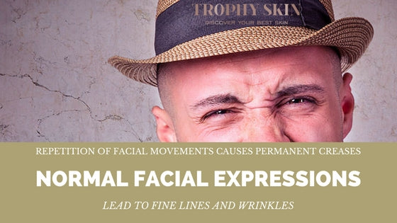 Facial Expressions lead to permanent creases or wrinkles